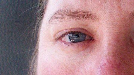 Recuerda que los ojos también pueden sufrir quemaduras solares