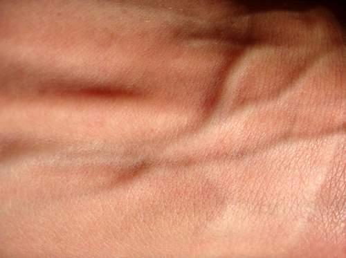 marcar venas del cuerpo