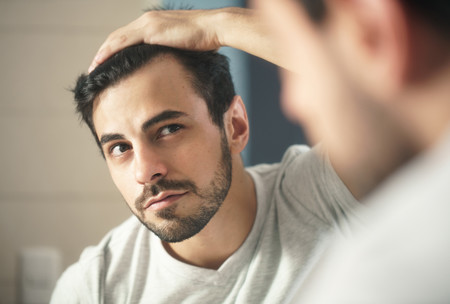 Tratamientos capilares e injertos de pelo: hay una razón genética para que la demanda sea mayor en España