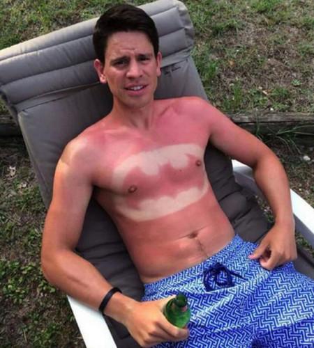 ¿De verdad hay gente que se está quemando la piel al sol para lucir un dibujo?