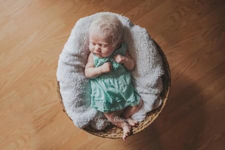 bebé-albinismo