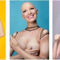 La historia de una superviviente al cáncer de mama a través de divertidas fotos