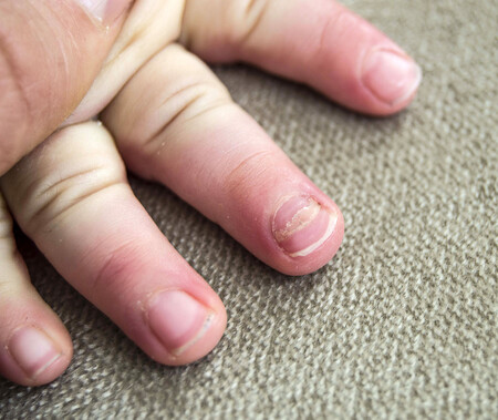 """""""¿Qué le pasa en las uñas?"""": principales problemas y alteraciones en las uñas de los niños"""