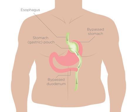 que se debe comer para adelgazar el abdomen