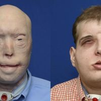 Se ha logrado concluir con éxito el trasplante de rostro más extenso de la historia