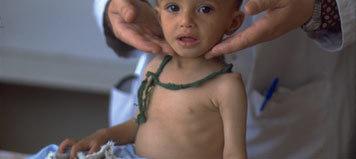 Tratar a los niños con neumonía en su casa es una medida efectiva según indica la OMS
