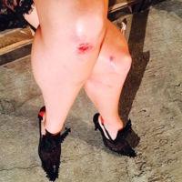 ¡Los ángeles de Victoria's Secret también se caen! Estas son las consecuencias en las rodillas de Candice Swanepoel