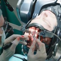 Implantarse chips en el cerebro ya no es cosa del futuro