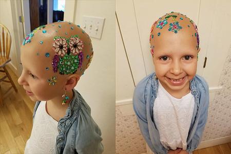"""Una niña de siete años con alopecia gana el concurso de """"Día del Cabello Loco"""""""