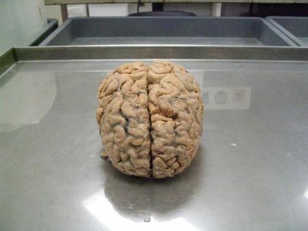 Gastamos 1.200 euros de energía para alimentar a nuestro cerebro