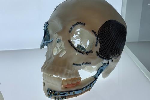 Órganos de plástico, prototipos y prótesis: para qué se está usando hoy la impresión 3D