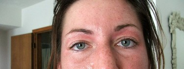 El ejercicio: ¿puede agravar el acné?