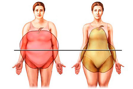 obesidad-pera-manzana