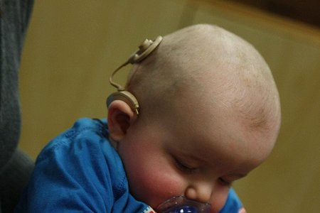 Implante coclear: características