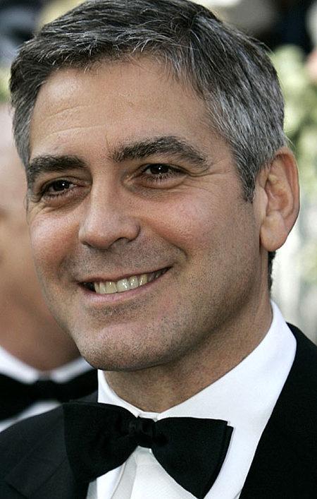 George Clooney o el supuesto resultado de un lifting de ojos. La blefaroplastia