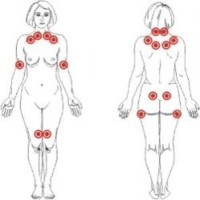 La fibromialgia.