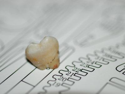 Unos dientes muy blancos no son síntoma de buena salud bucodental