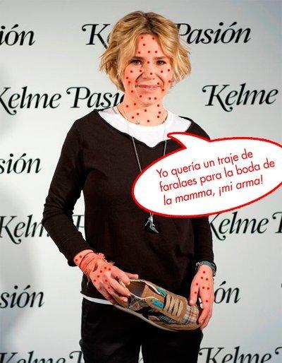 Eugenia Martínez de Irujo: Varicelas con gusto... no pican
