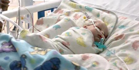 Utilizan pegamento rápido para operar a un bebé de tres semanas de un aneurisma