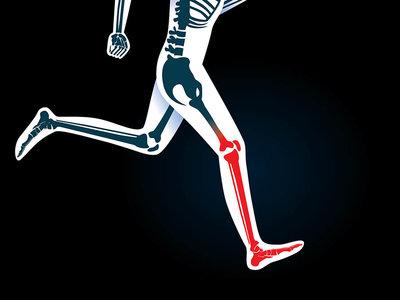 Si estás comenzando a hacer ejercicio, evita las fracturas por estrés