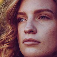 5 alimentos que es mejor evitar si tienes acné (o eres propenso)