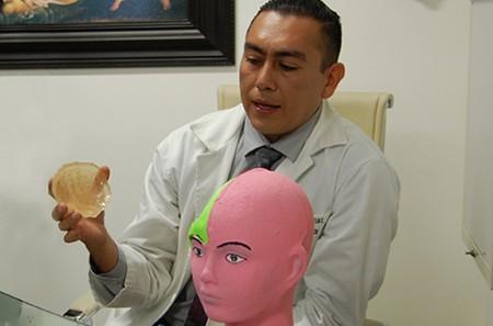 Científicos en Guadalajara producen prótesis craneales de bajo costo