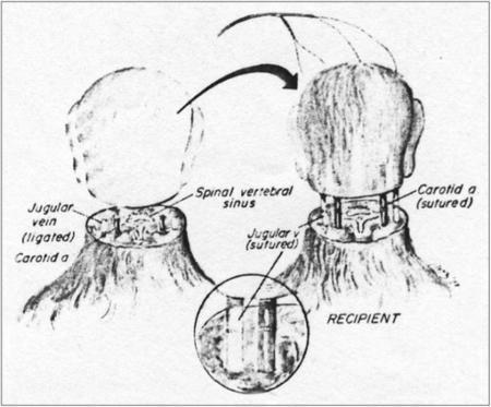 Head Transplant Rhesus