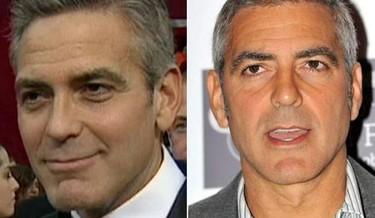 ¿George Clooney se ha operado para quitarse las bolsas de debajo de los ojos?