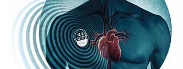 Las vulnerabilidades en dispositivos médicos aumentan: surgen nuevos ataques para apagar bombas de insulina y hackear marcapasos