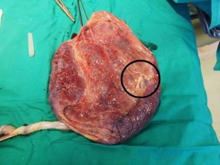 La vida se abre paso: increíble imagen de una placenta con un DIU anticonceptivo