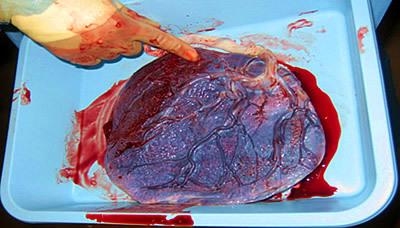Los beneficios de ingerir la placenta