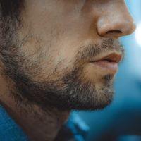 Mi experiencia con el dermarolling: el rodillo con pinchos para desaparecer las marcas de acné