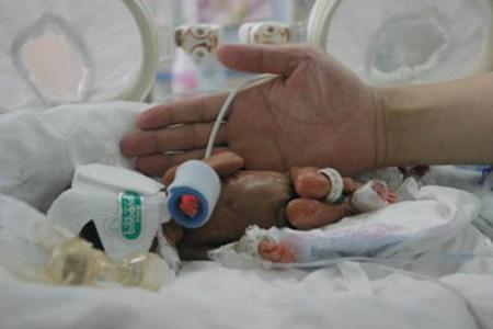 Sobrevive bebé china de 413 gramos y 26 centímetros