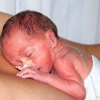 """""""Mi hijo vino al mundo antes de tiempo para salvarme la vida"""": la preciosa historia de un bebé prematuro y su madre"""