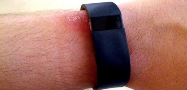 Vuelven las irritaciones de piel con los nuevos productos Fitbit