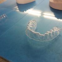 Estudiante de diseño se hace su propia ortodoncia con impresoras 3D