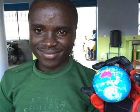 La mano impresa en 3D en España que cambia una vida en África