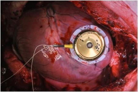Este marcapasos funciona con el movimiento del propio corazón