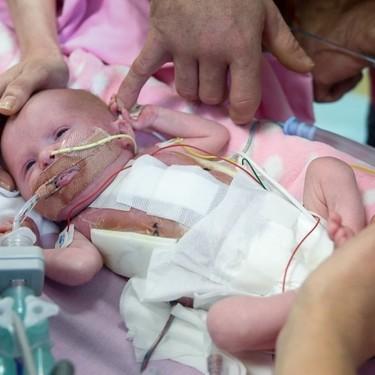 La bebé británica que nació con el corazón fuera de su cuerpo, ya ha sido dada de alta