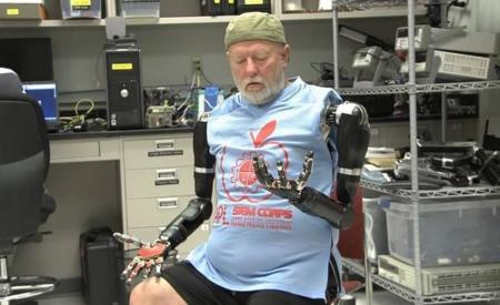Avance impresionante en prótesis de miembros controlados con el pensamiento, un amputado lo demuestra