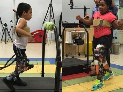 Esta prótesis permite andar a niños con parálisis cerebral