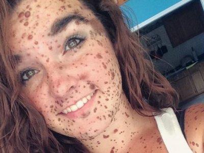 Ciera Swaringen y su rara enfermedad de la piel: todo un ejemplo ante la adversidad