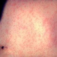 """La """"epidemia"""" de sarampión podría llegar a México, pero el gobierno asegura estar preparado"""