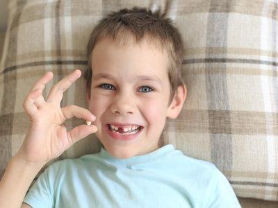 Dientes de tiburón en la infancia: cuando los dientes de leche se resisten a caer