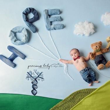 Cada bebé es precioso: las más bonitas fotos de bebés con necesidades médicas especiales