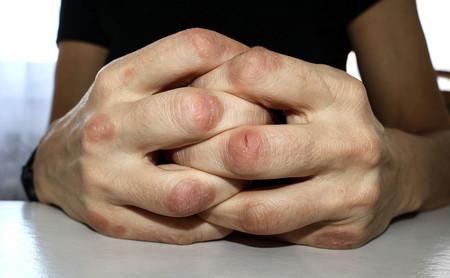 Artritis psoriásica: qué es, cuáles son sus causas y cómo el ejercicio físico puede ayudar en esta patología
