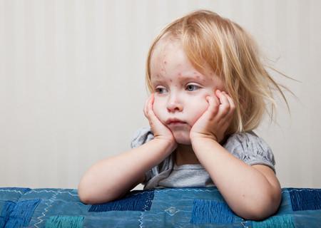 Fiestas de la varicela: hacer que los niños se contagien la enfermedad en lugar de vacunarlos es muy peligroso