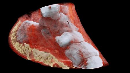 radiografia-3d-color