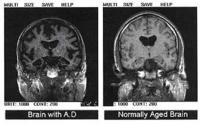 El Alzheimer puede ser el resultado de un nuevo tipo de diabetes