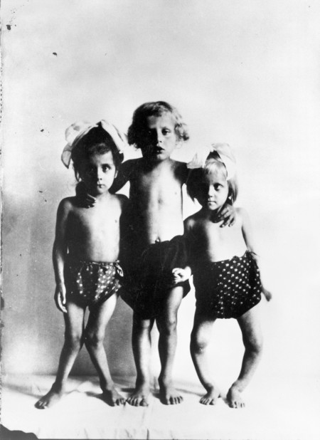 Photograph Three Children With Rickets Wellcome L0014375 1